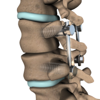 spinal-fusion